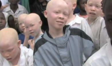 Embedded thumbnail for Working to stop the murders of Tanzanians with Albinism